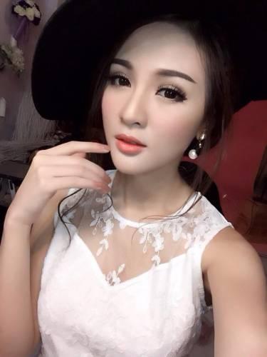 45 5 - Kelly Tú Anh lộ cằm méo mó do lạm dụng phẫu thuật thẩm mỹ