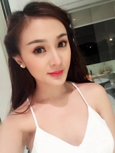 52 2 - Kelly Tú Anh lộ cằm méo mó do lạm dụng phẫu thuật thẩm mỹ